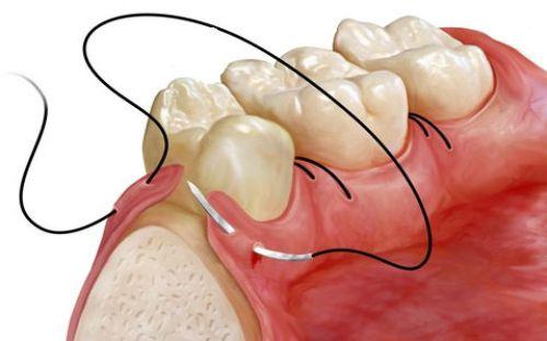 chirurgie-dento-alveolara
