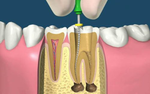 endodontie-clinica-stomatologie-dentocalm