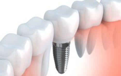 implantologie-clinica-stomatologie-dentocalm