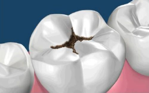 odontologie-clinica-stomatologie-dentocalm