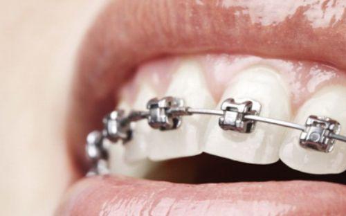 ortodontie-clinica-stomatologie-dentocalm
