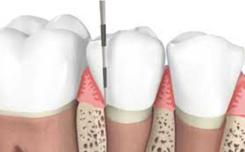 paradontologie-clinica-stomatologie-dentocalm