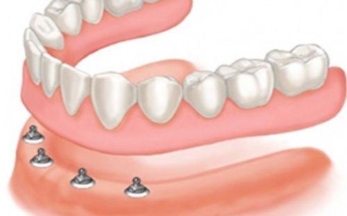 protetica-clinica-stomatologie-dentocalm