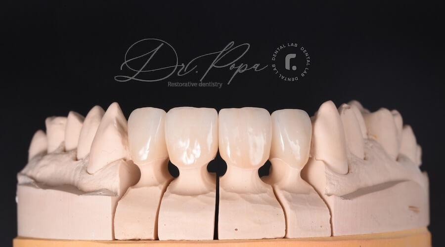 coroane dentare zirconiu Cluj